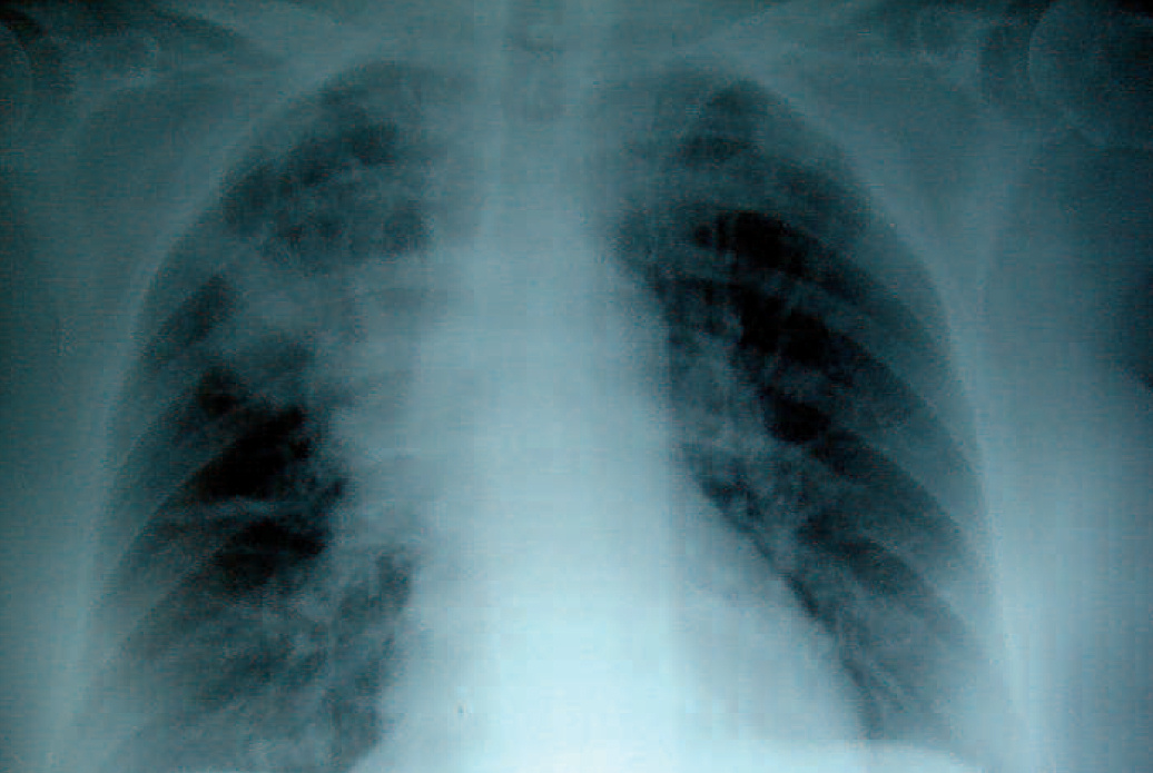 Neumonía apical derecha en la FQ, la infección crónica da lugar a la destrucción del parénquima pulmonar, ocasionando por último la muerte por insuficiencia respiratoria.