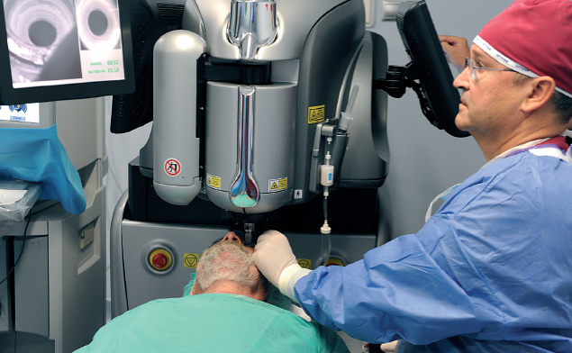 cirugía de cataratas sin bisturí