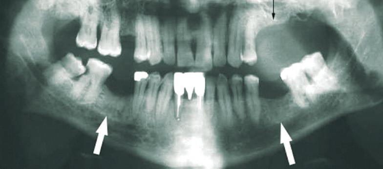 bifosfonatos-osteonecrosis-mandibular