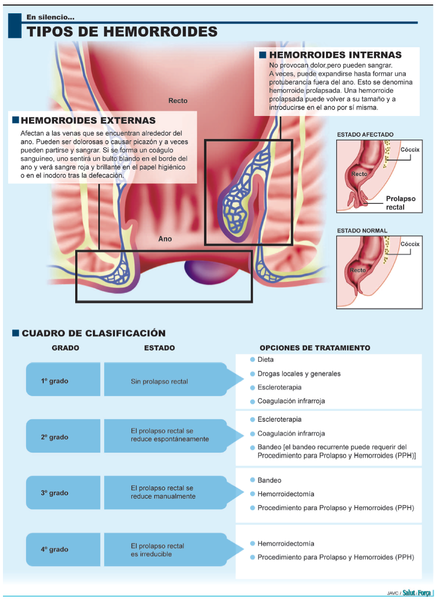 hemorroides-3