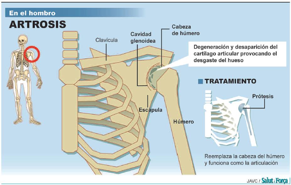 Lesiones articulares. Del hombro a la cadera - Salud Ediciones