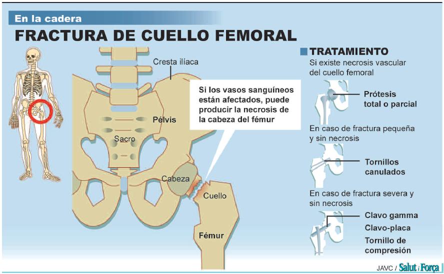 fractura-cuello-femoral