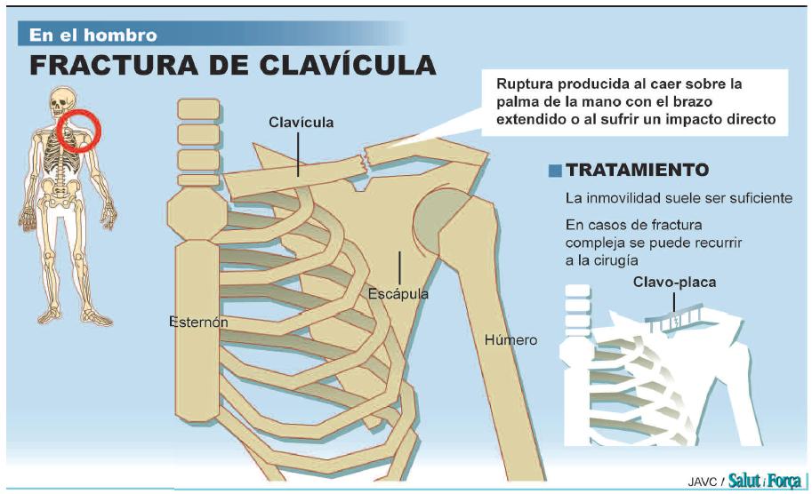 fractura-de-clavicula