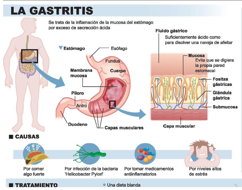 Gastritis sintomas