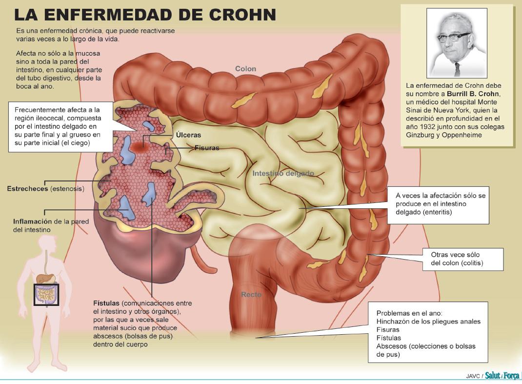 Boca de la enfermedad de Crohn