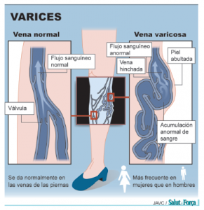 varices-1