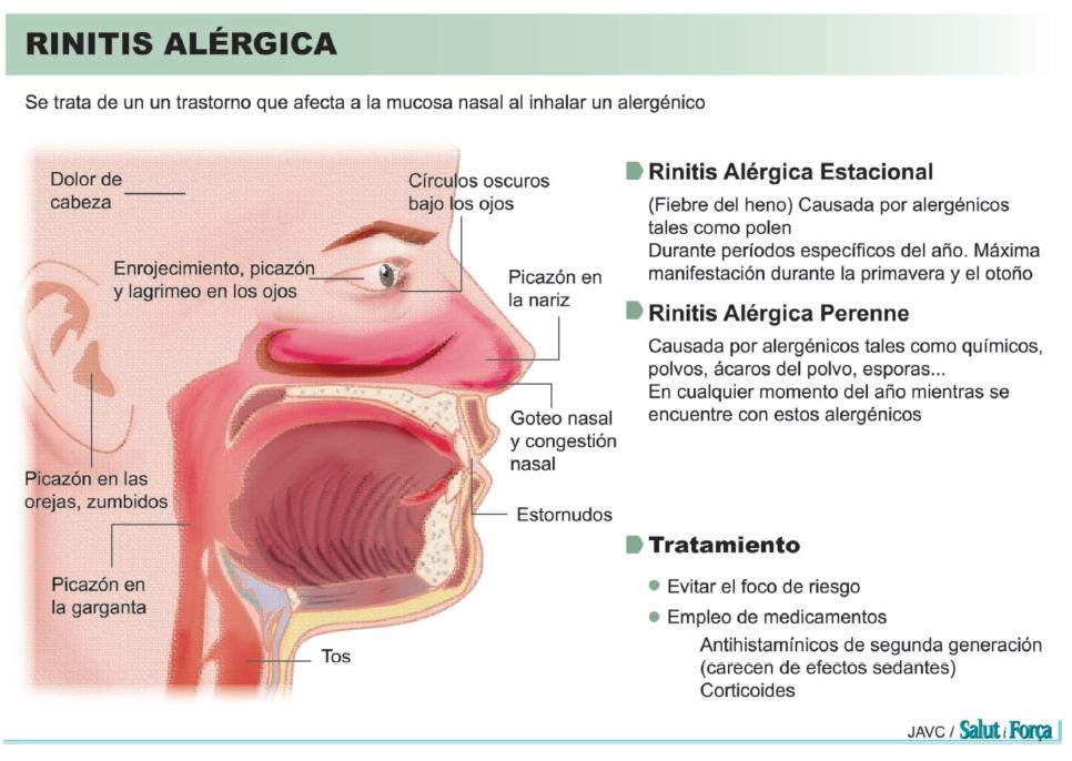 alergia-4