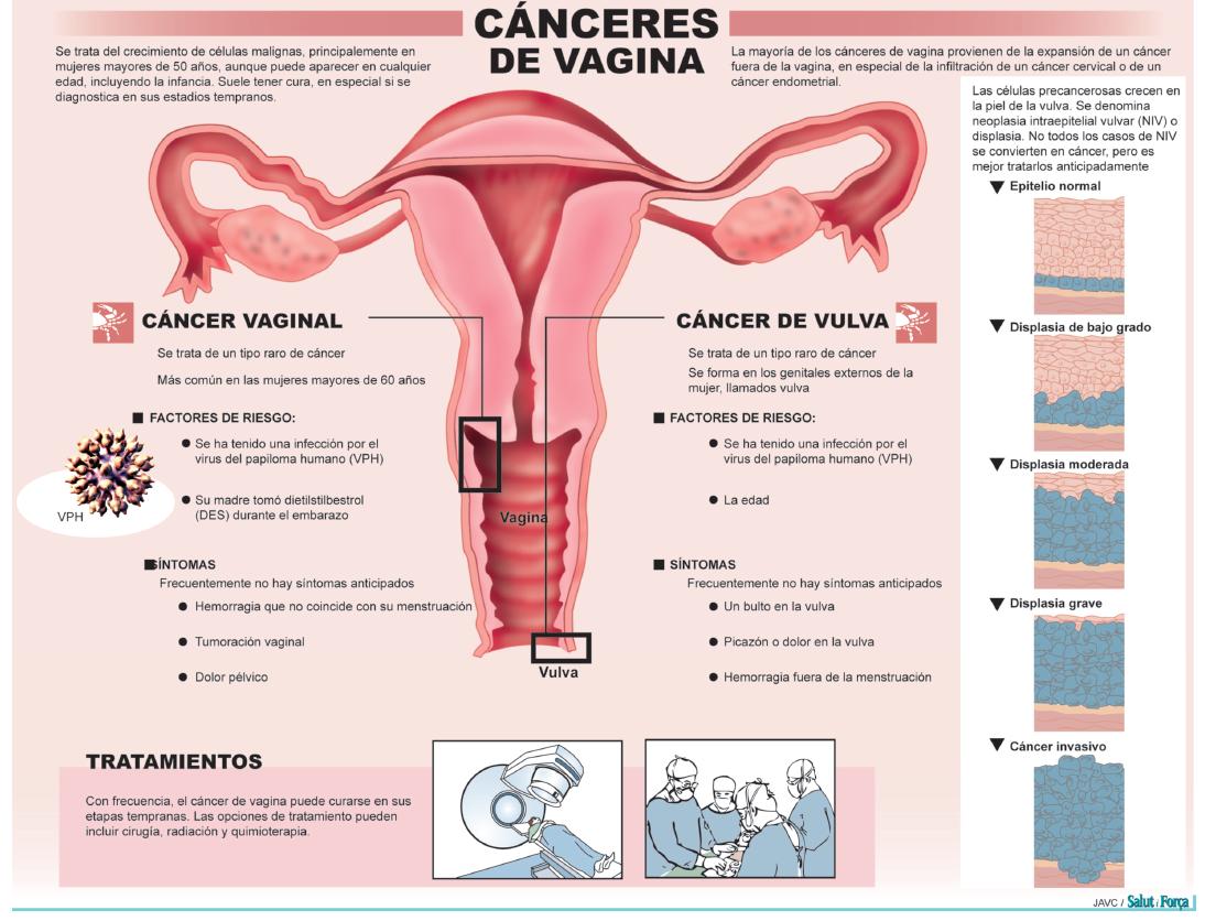 cancer-vagina