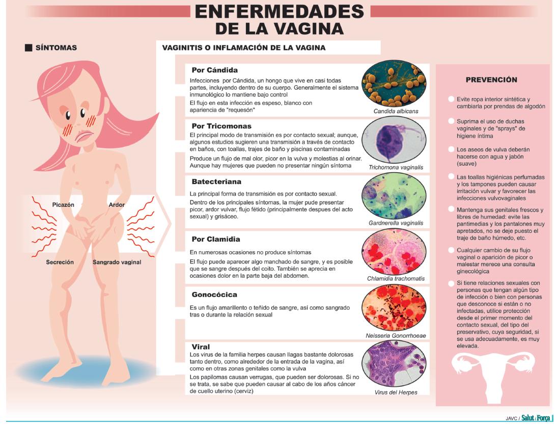 Picor genitales