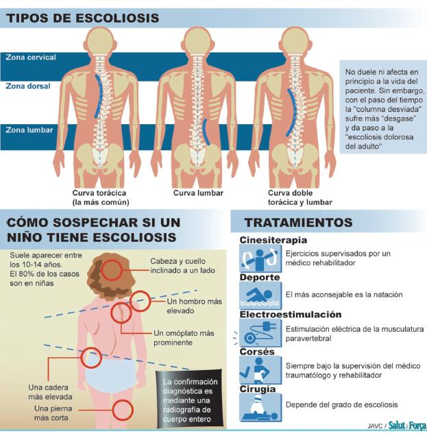 tipos-escoliosis