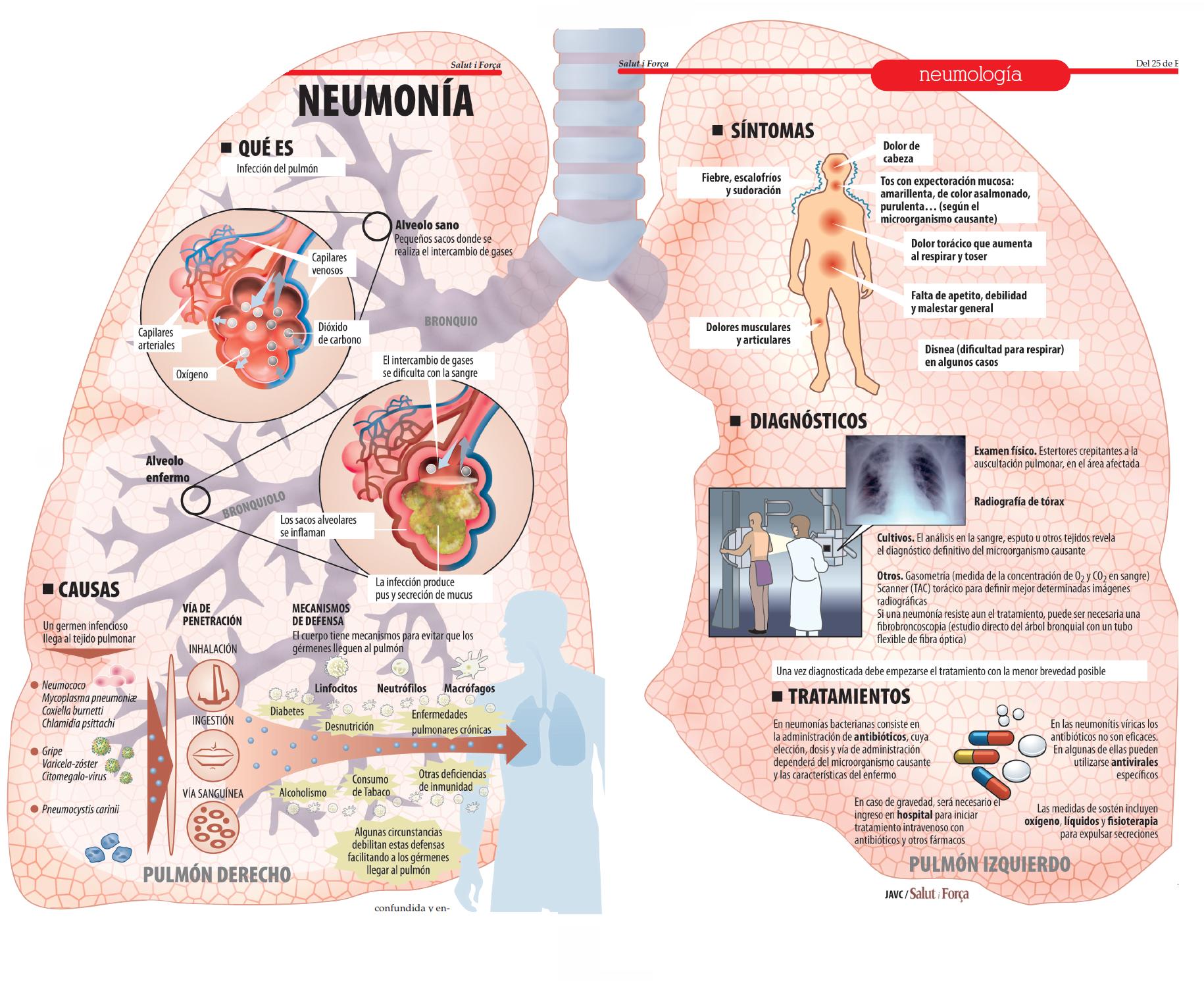 Neumonía: lo que parece un resfriado y es una peligrosa inflamación ...