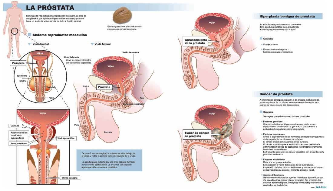 tipos de examen de prostata