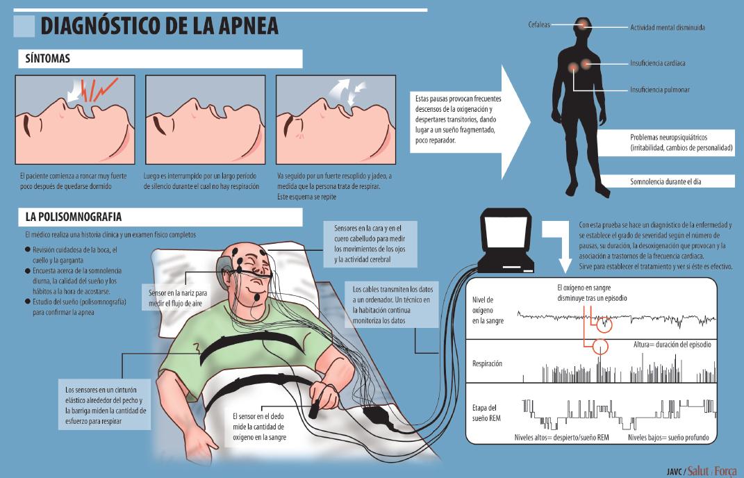 Apnea del sueño, ahogos en sueños, peligro de enfermedad - Salud ...