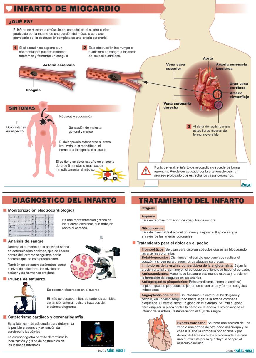 Infarto agudo de miocardio: músculo cardíaco se muere y el corazón ...