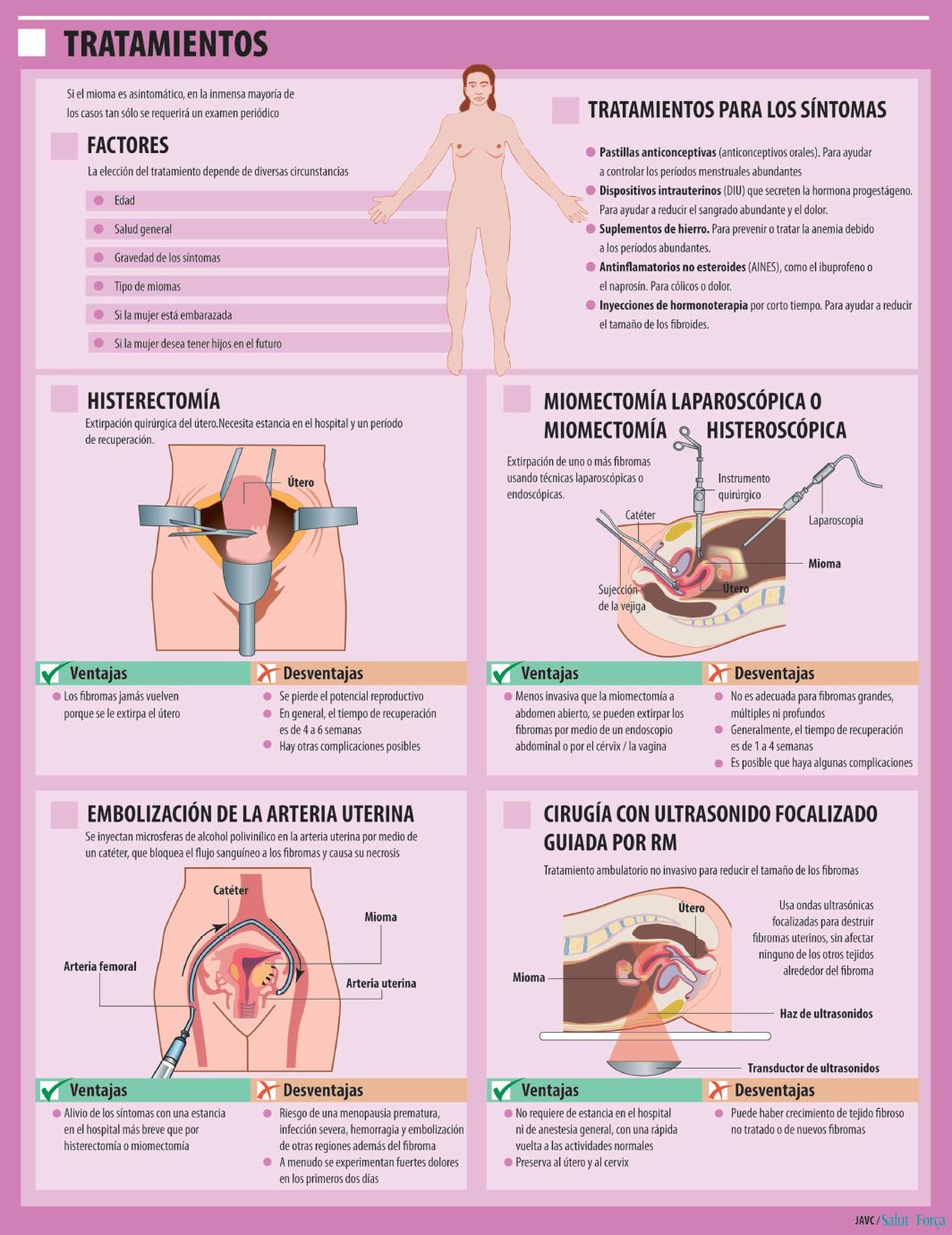 miomas-tratamiento