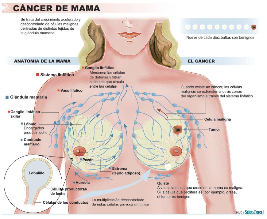Cáncer de mama: la ciencia y la prevención al servicio de la mujer ...