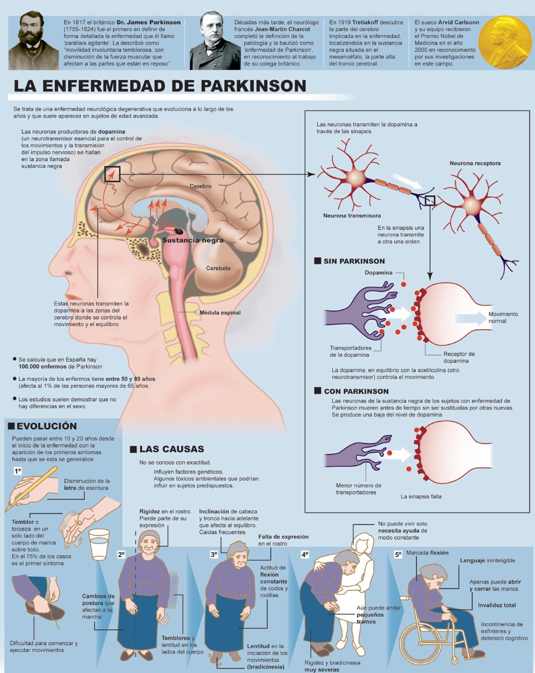 El Parkinson, mucho más que un \'temblor de viejo\' - Salud Ediciones